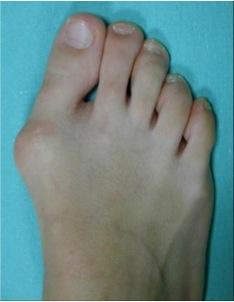 dr yves tourn 201 chirurgie du pied et de la cheville